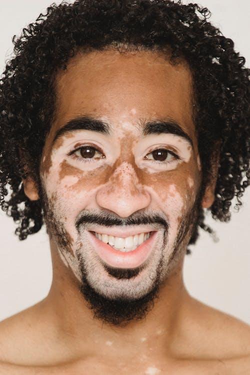 Vrolijke Zwarte Man Met Vitiligo Huid