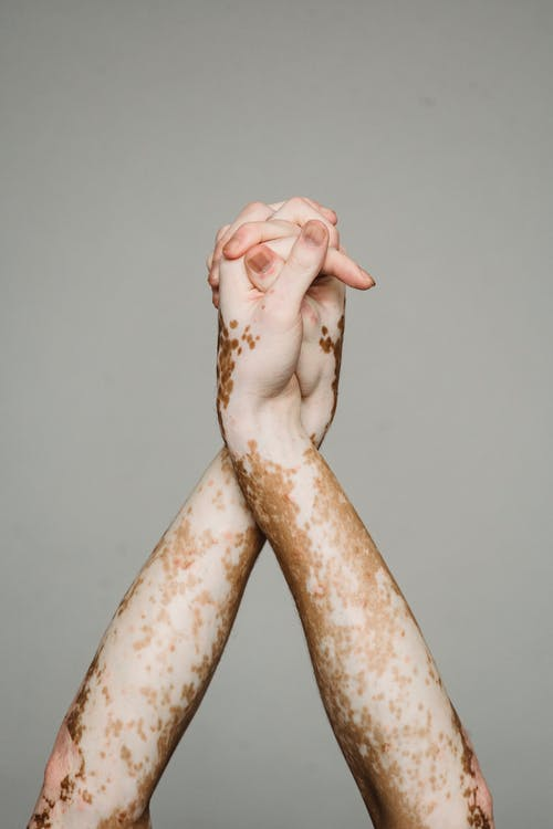 Hands of person with vitiligo against gray background
