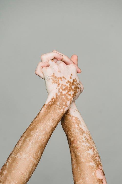 Gekruiste Handen Met Vitiligo Huid Tegen Grijze Achtergrond