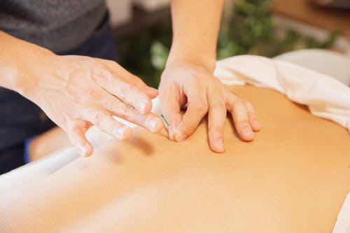 From above of crop anonymous man applying needles on back of client during acupuncture procedure