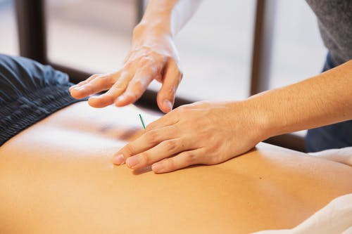 Crop anonymous male doctor putting needles on back during acupuncture therapy session in rehabilitation salon