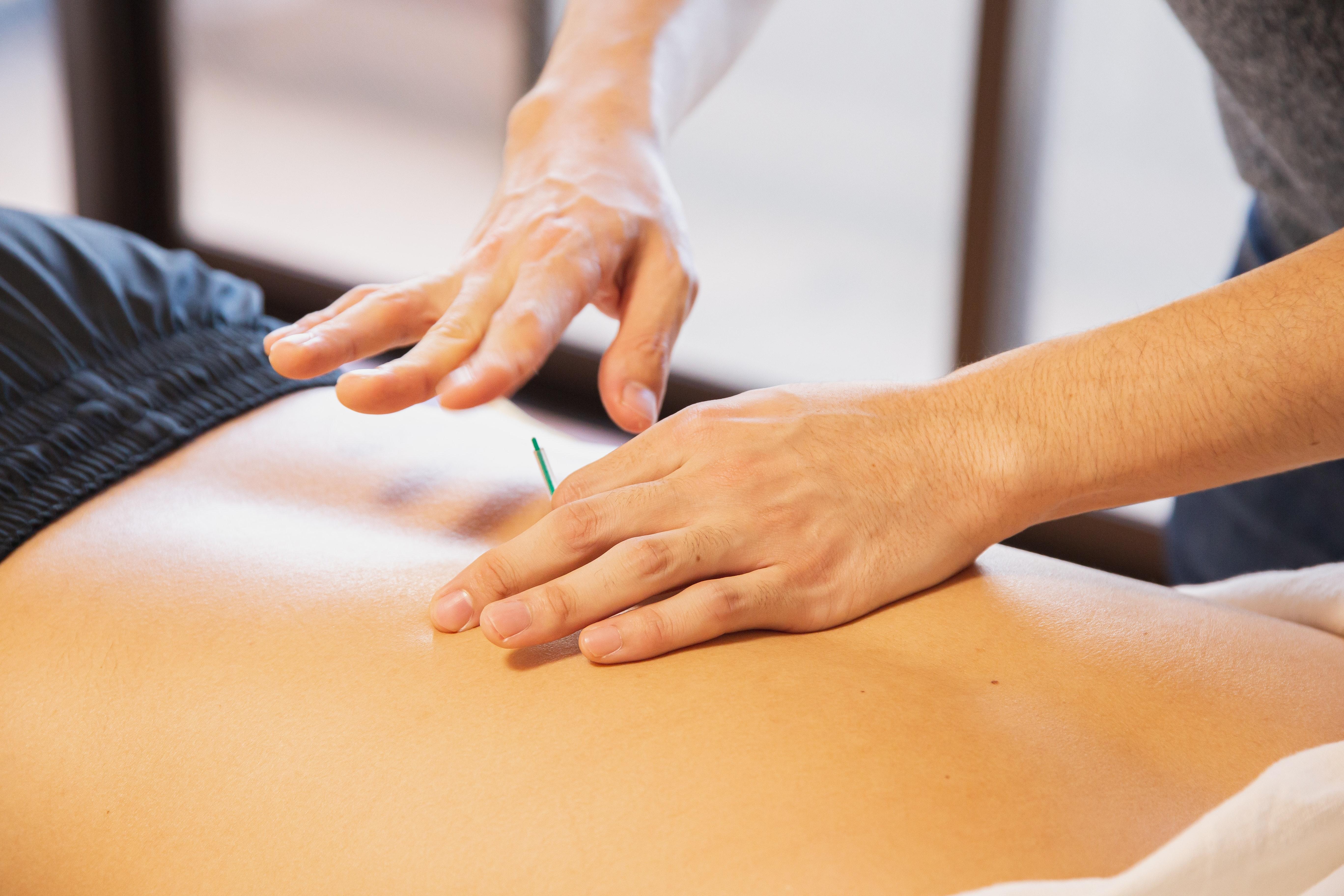 Person receiving acupuncture service in Preston