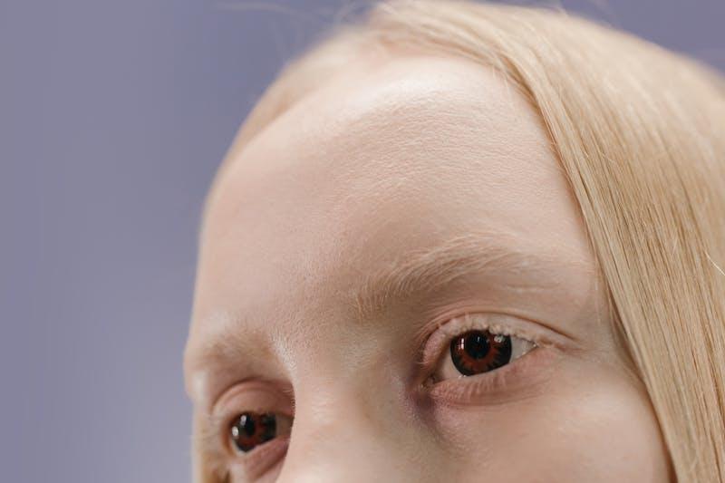 Forehead linings