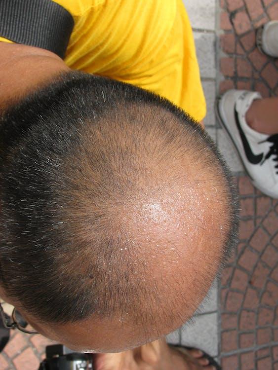 Free stock photo of balding, contrast, egg