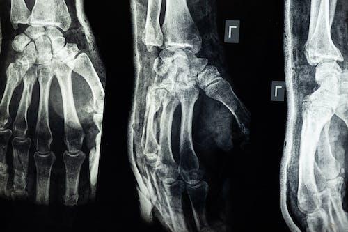 Безкоштовне стокове фото на тему «xray, анатомічний, Анатомія, випромінювання»