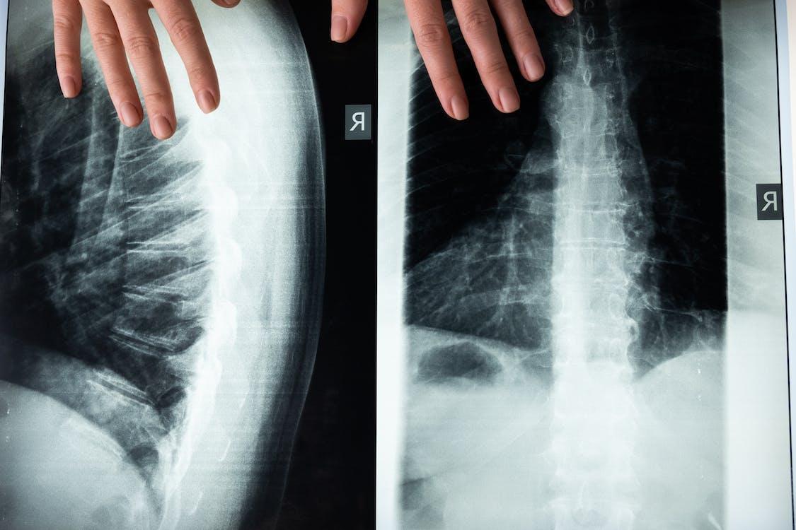 Immagine gratuita di anatomia, anatomico, assistenza sanitaria