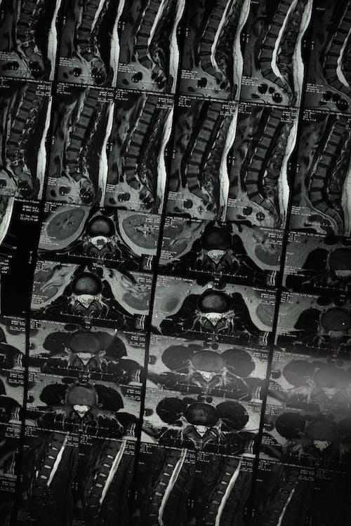 Безкоштовне стокове фото на тему «анатомічний, Анатомія, брудний, взуття»