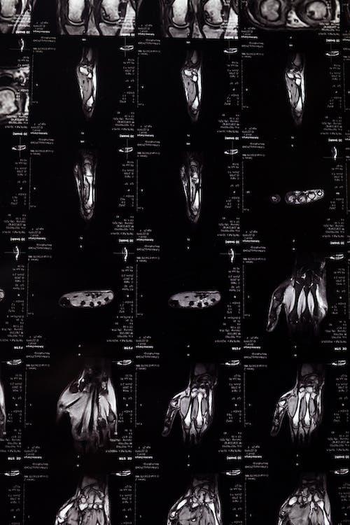 Безкоштовне стокове фото на тему «абстрактний, анатомічний, Анатомія, випромінювання»