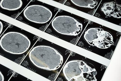 Безкоштовне стокове фото на тему «абстрактний, анатомічний, Анатомія»