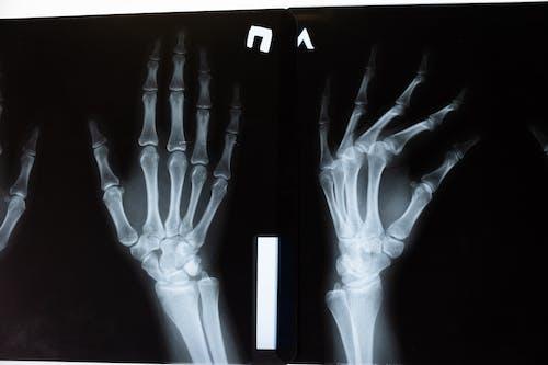 Безкоштовне стокове фото на тему «xray, анатомічний, Анатомія, біологія»