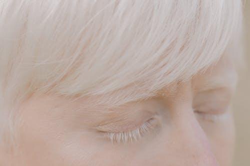 Foto d'estoc gratuïta de albinisme, albino, blanc