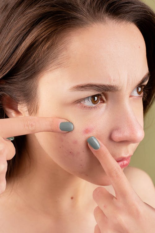 Free stock photo of acne, adult, applying