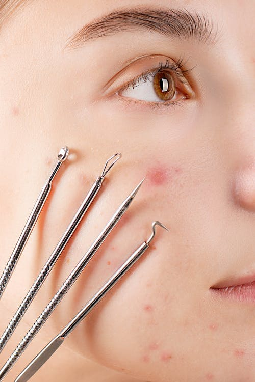Woman's Face With Four Skin Extractor Tools