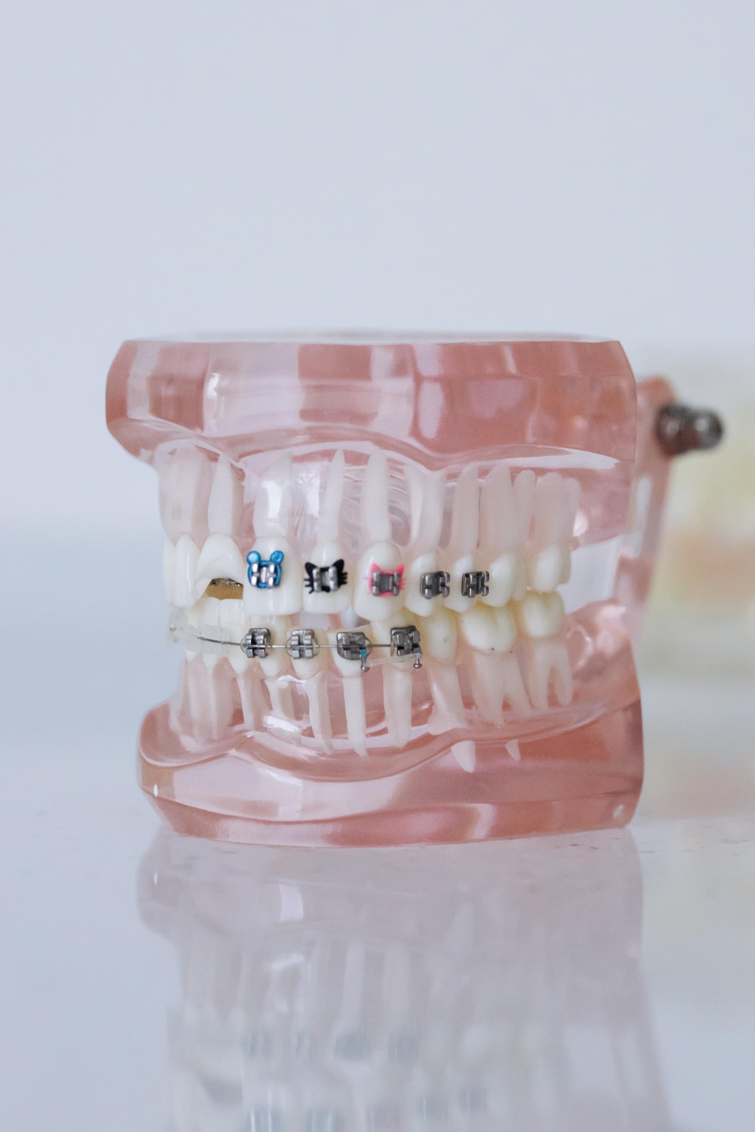 【牙科Q&A】植牙簡介與價格懶人包大全集-植牙手術是什麼?植牙要多少錢?