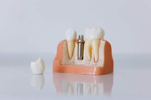 implanti za zube