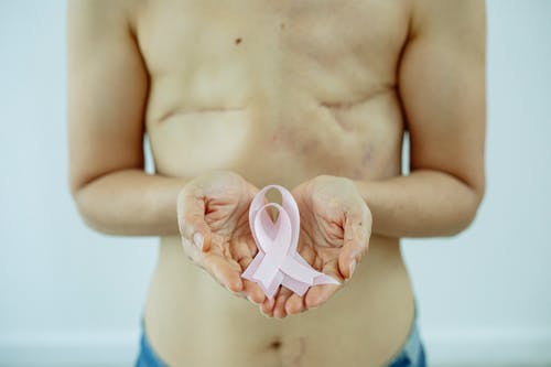 Shirtless woman with scars after cancer showing pink ribbon in hands