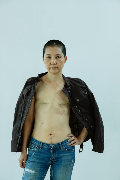 Serious senior Asian woman with scars after breast surgery in jeans and leather jacket standing with hand on waist and looking at camera against light background
