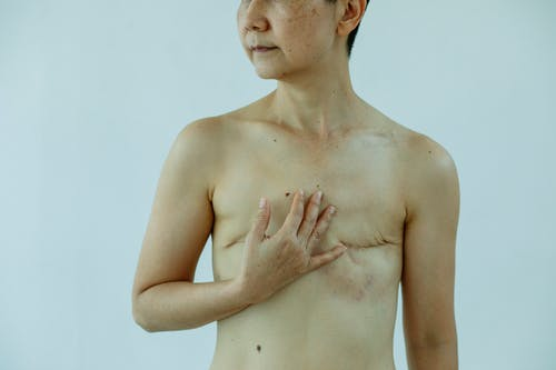 Crop anonymous female touching breast with scars after operation on white background of studio