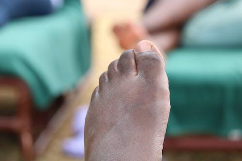 Ingyenes stockfotó ezek a száraz lábujjak témában