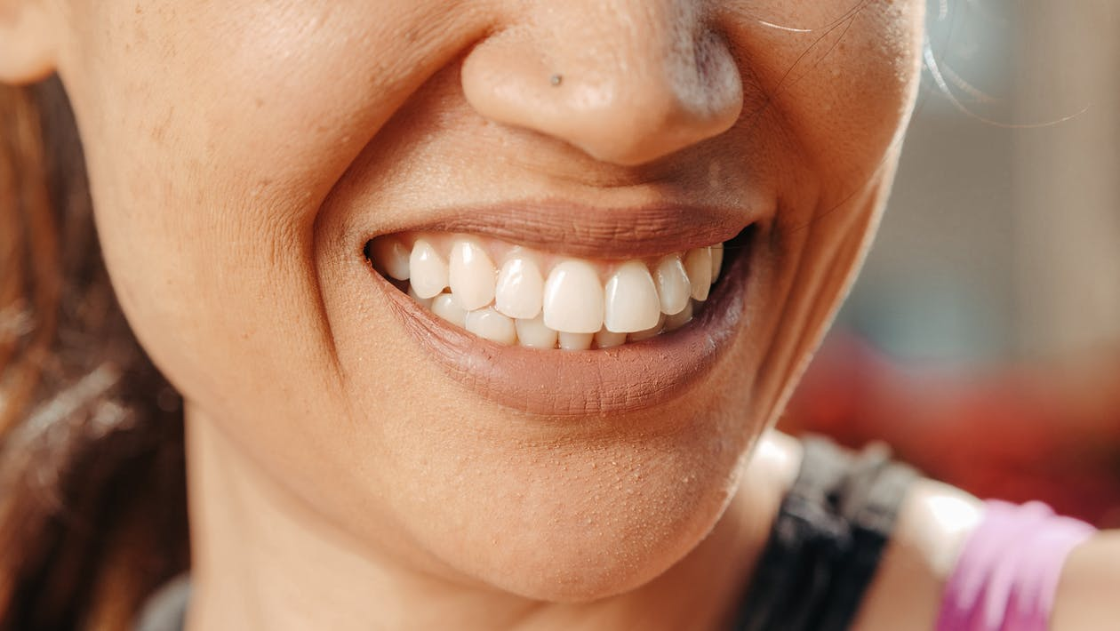 Filing Teeth After Braces: Take The Scare Away