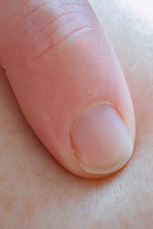 Close-Up Shot of a Person's Finger on Skin