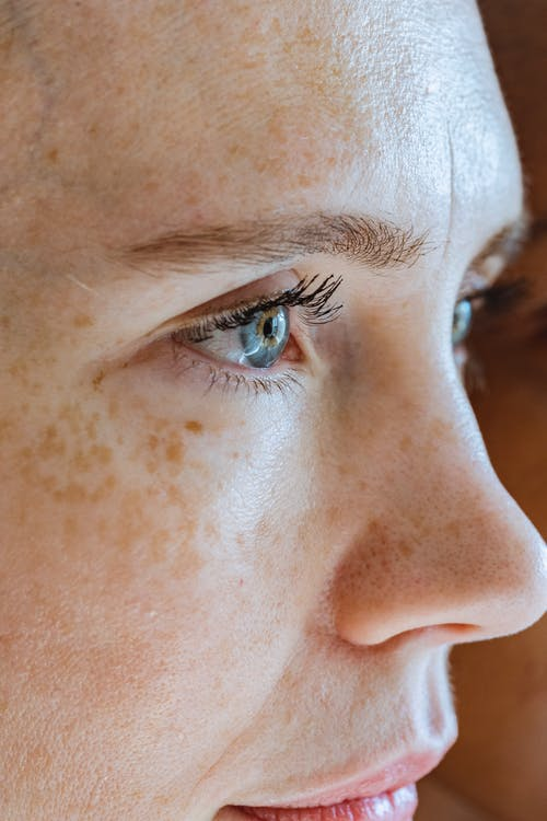 Woman with freckles on blue eyes