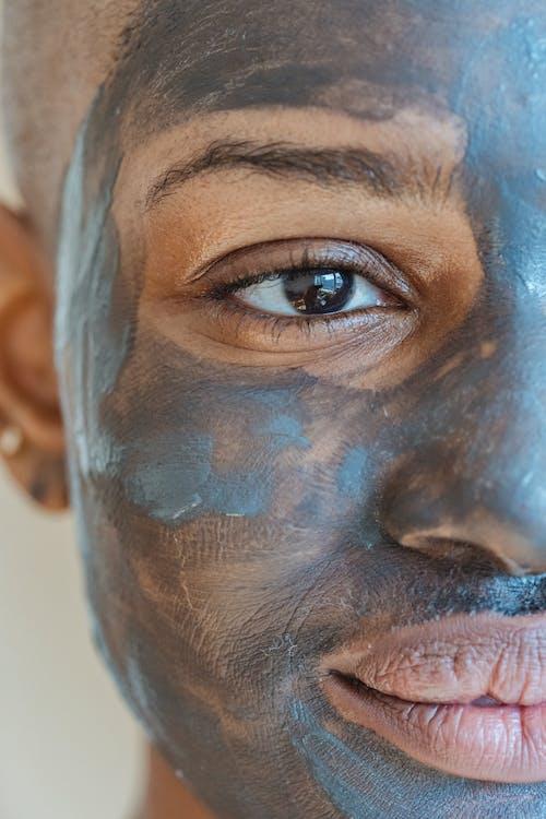 Kostenloses Stock Foto zu afroamerikaner-frau, akne, aussehen