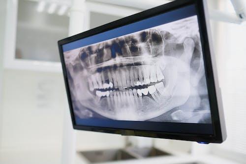 Foto profissional grátis de equipamentos odontológicos, monitor, monitorar