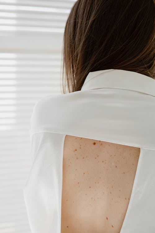 A Woman with Freckles on Her Back
