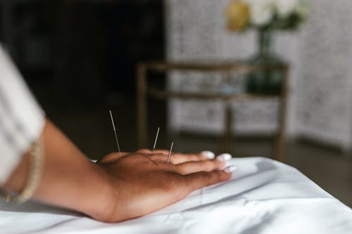 Free stock photo of acupuncture, acupuncture point, acupuncturist