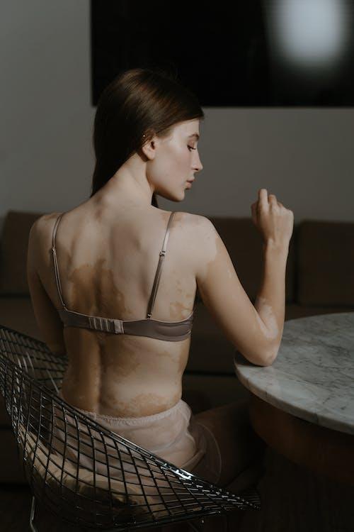 Ilmainen kuvapankkikuva tunnisteilla alusvaatteet, hypopigmentaatio, ihon värimuutokset