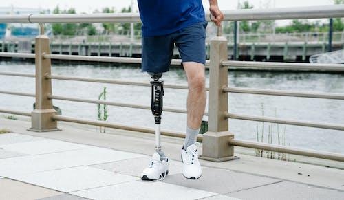 Unterer Abschnitt Der Person Mit Beinprothese