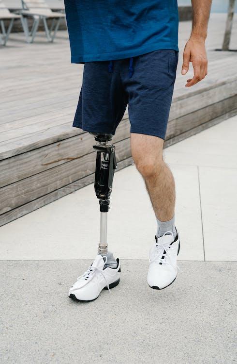 Homem Com Perna Protética E Tênis Branco De Treinamento