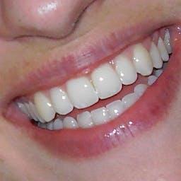 有关微笑 漂亮 灿烂的笑容的免费素材图片
