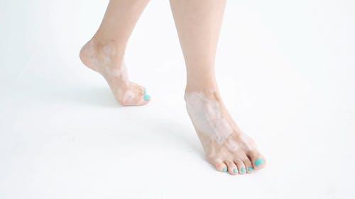 A Woman's Feet Skin  With Vitiligo