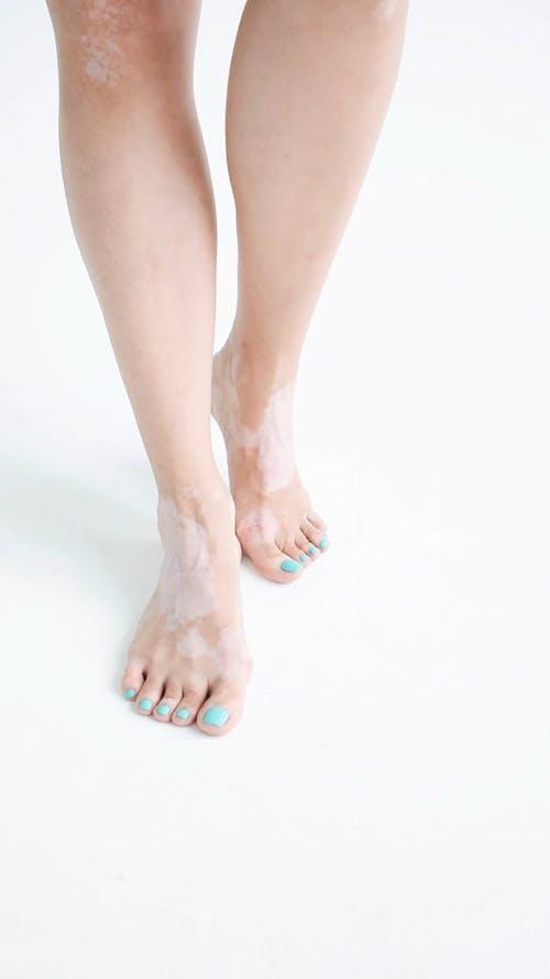 A Woman Feet Showing Vitiligo