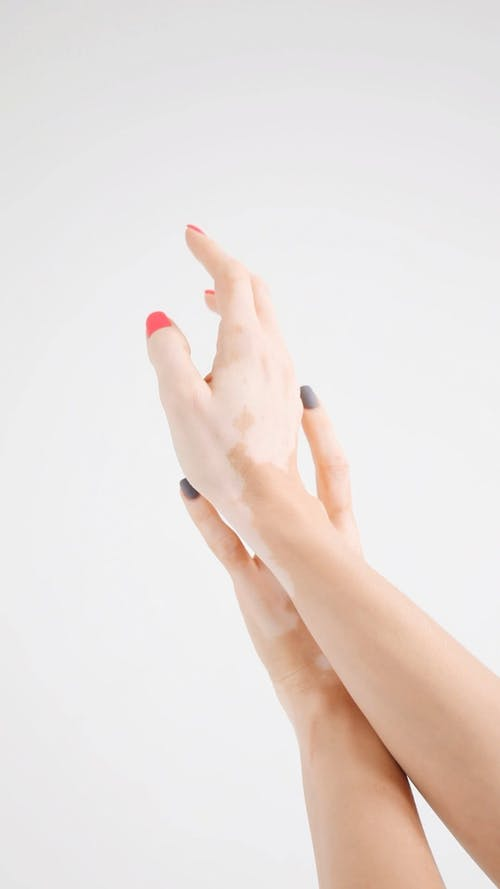 Person Having a Skin Discoloration on Her Hands