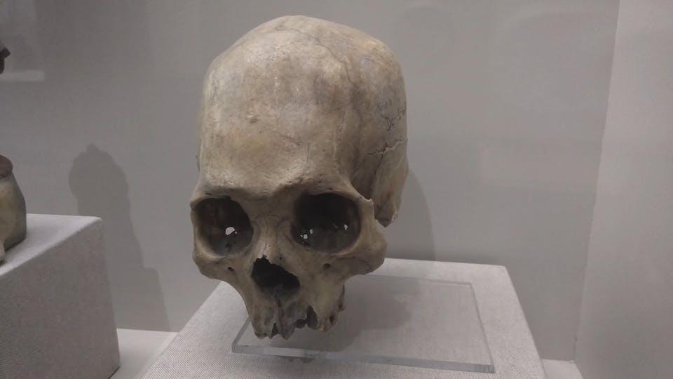 Human Skull Inside A Glass Box