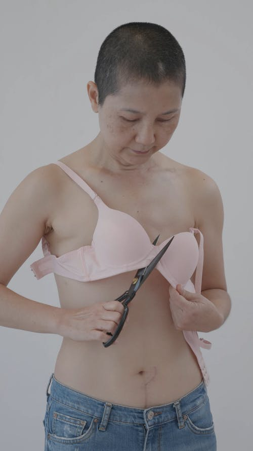 Woman Showing Her Stitches