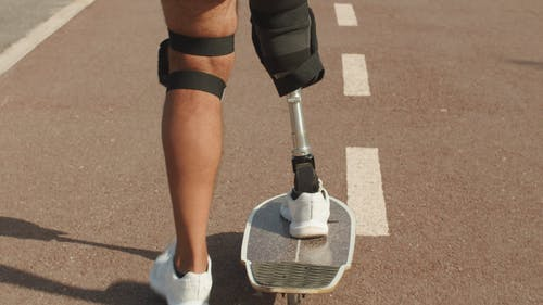 A Skateboarder with a Prosthetic Leg Practicing in the Street