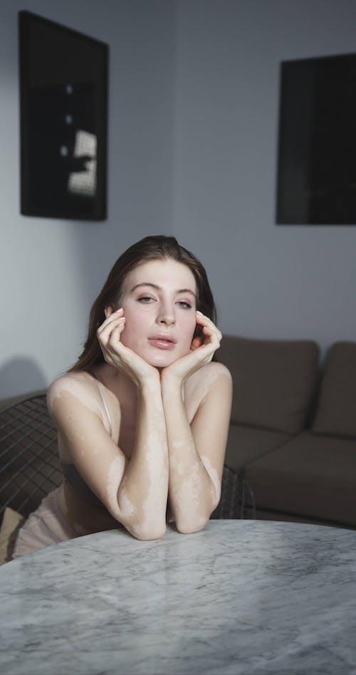 Female Model with Vitiligo Modeling Beside a Marble Table
